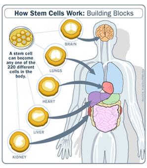 Mengapa kita membutuhkan IonicSilverGT untuk membunuh bakteri